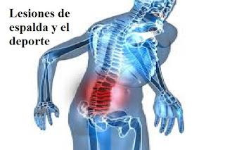 arbitros-futbol-lesiones-espalda