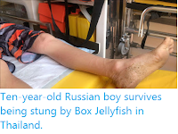 https://sciencythoughts.blogspot.com/2019/11/ten-year-old-russian-boy-survives-being.html