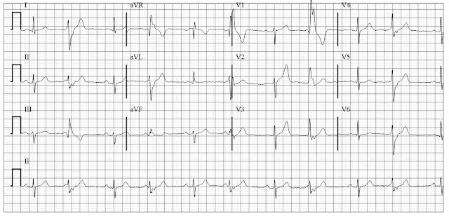 ECG of Ventricular Bigeminy