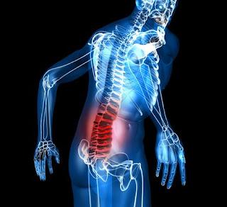 cara mengatasi nyeri pada punggung