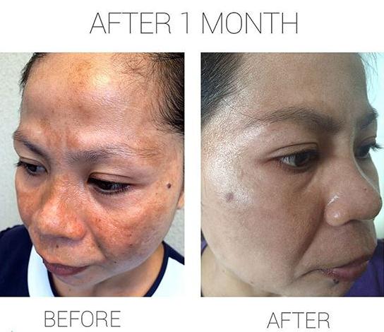 testimoni tsya beauty skincare
