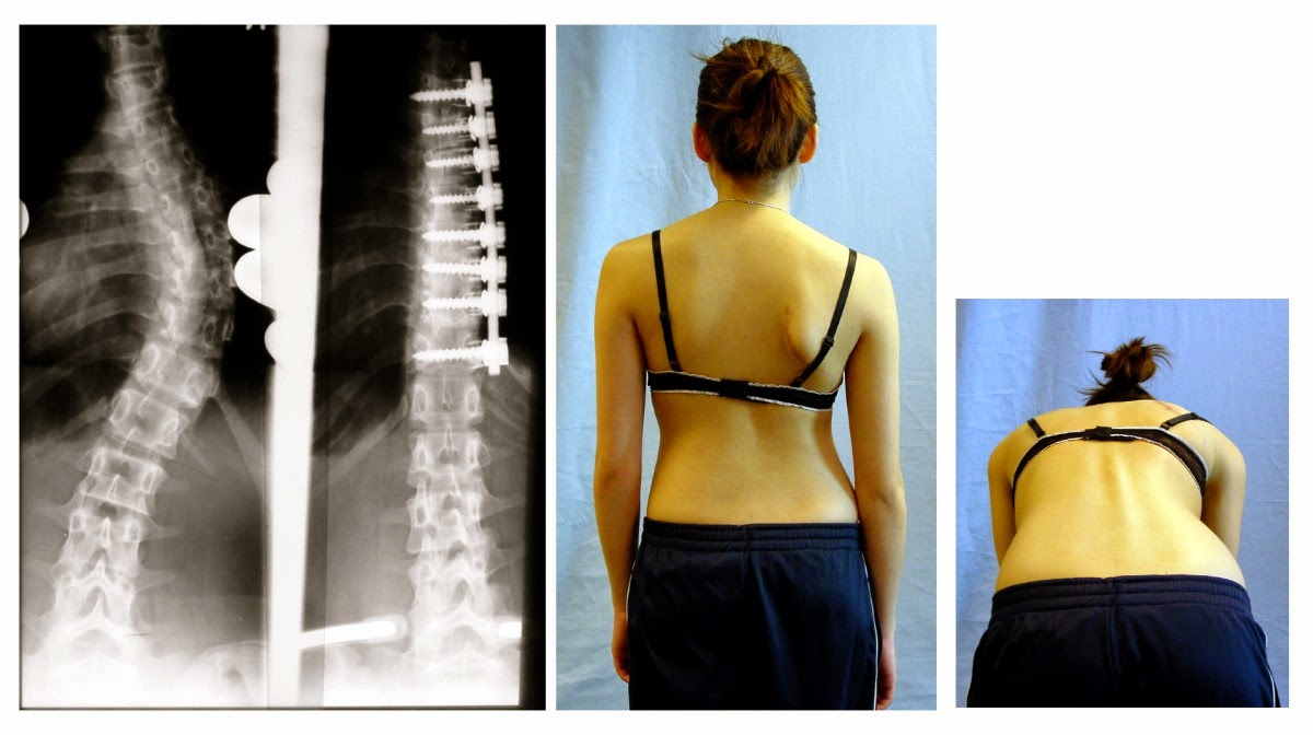 Yoga For Healthy Aging Friday Q A Yoga For Surgically Repaired Scoliosis