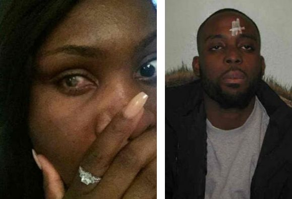 LOVE   jpg How This Beautiful Nigerian Lady Was Blinded In One Eye By Her Violent Lover