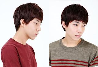 4 bulan sesudah operasi plastik mata, operasi plastik hidung, anti aging di Wonjin