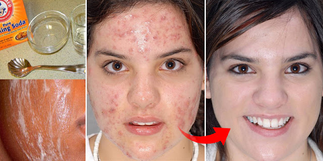 How To Get Rid Of Acne And Pimples Very Fast!