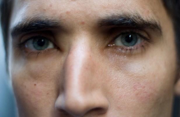 Cara Mengobati Mata Bengkak dan Penyebab Mata Bengkak