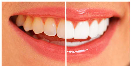 How to Get Rid of Yellow Teeth: Best Home Remedies-Starglamours