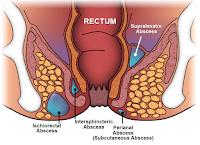 http://saysoeshson.blogspot.co.id/2015/09/pengobatan-tradisional-penyakit-fistula.html