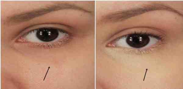 علاج سواد تحت العين مجرب