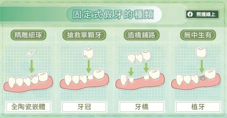 固定式假牙的種類