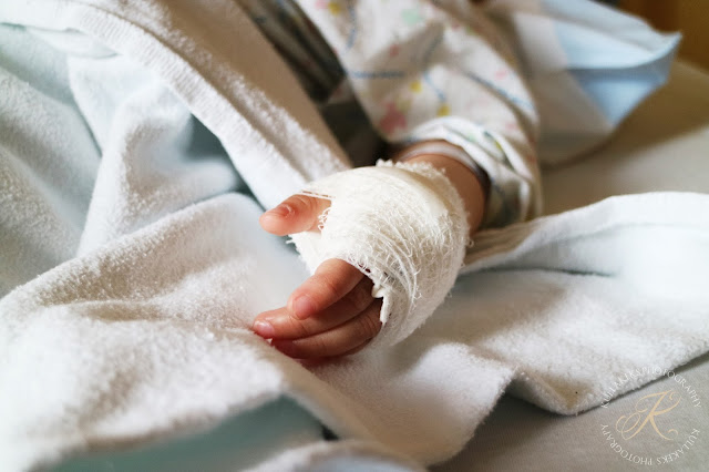 Polypenoperation am Kind - frisch operiert