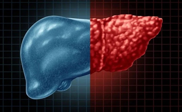 Hepatite C e Transplante de Fígado