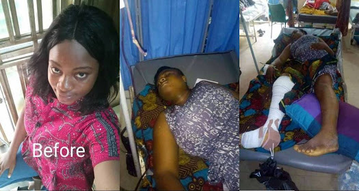 Lady Falls From Balcony Of 2-Storey Building While Chatting With Friend (Photos)