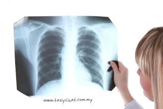 Pemeriksaan x ray