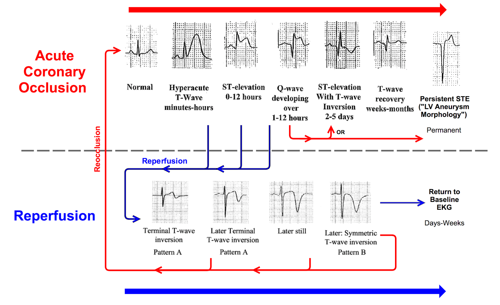 Dr Smith S Ecg Blog Is There Wellens Syndrome In Left