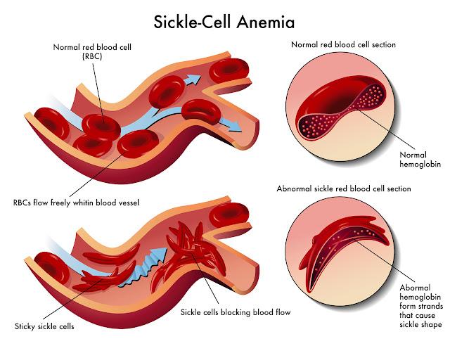علاج فقر الدم المنجلي