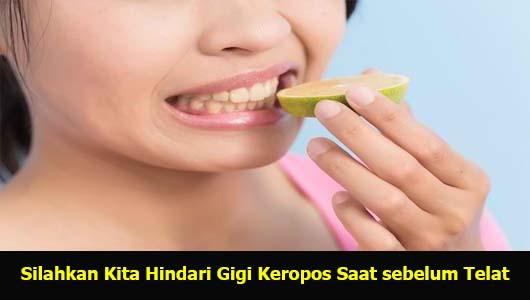 Silahkan Kita Hindari Gigi Keropos Saat sebelum Telat