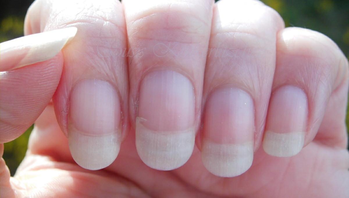 Susis Kinkerlitzchen: Fingernägel-Worst-Case
