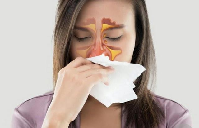 Cara Mengobati Sinusitis dengan Obat Alami