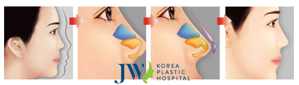 Nâng mũi S line - Mũi thon chuẩn đẹp S line như sao Hàn