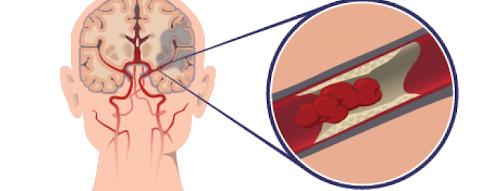 Terapi Akupuntur Untuk Stroke