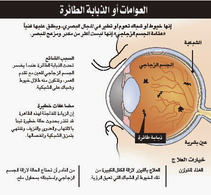 مركز العيون الصناعية الذبابة الطائرة في العين إحدى مشاكل الرؤية