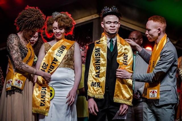 Uganda realiza primeiro concurso de beleza para pessoas com albinismo