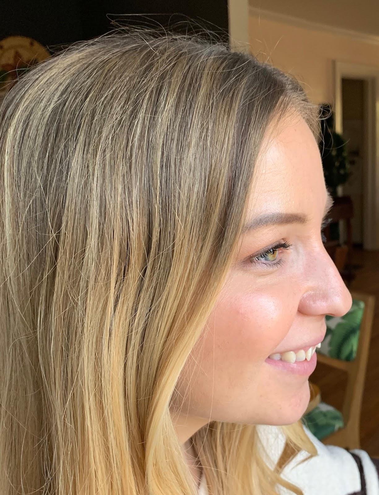 SmileLove Aligner Treatment: Before + After