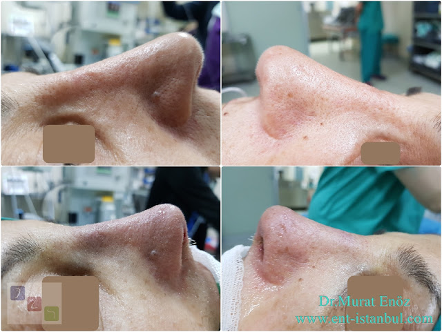 long nose,Revision rhinoplasty in Istanbul, Long nose correction,
