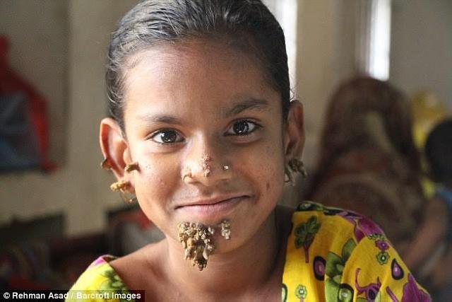"""Gadis Belia Terkena Sindrom """"Manusia Pohon"""" yang Pertama Kali di Dunia"""