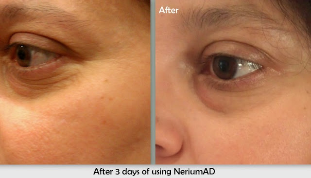 nerium skin care side effects 2017