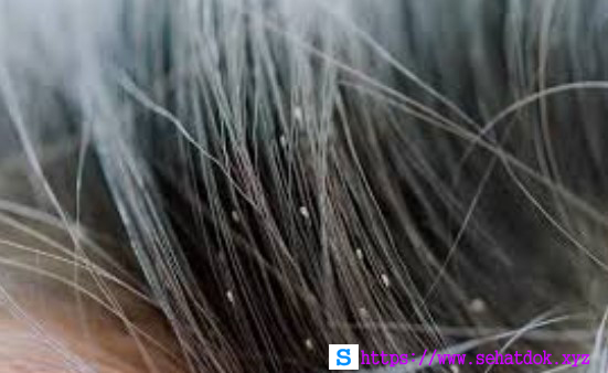 Cara Ampuh Menghilangkan Kutu Rambut Pada Anak