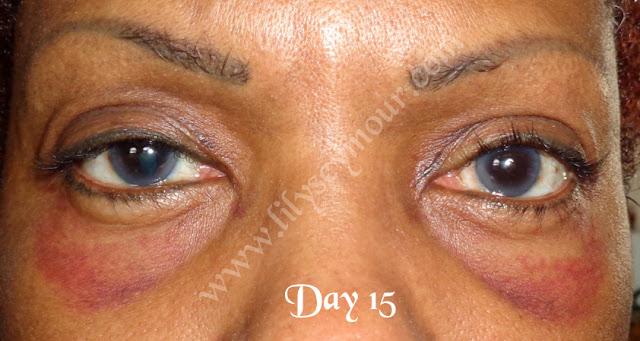 African American Ethnic Blepharoplasty (Eyelid Surgery)