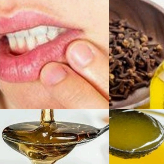 how to cure mouth sore, home remedies for mouth sore, tulsi leaves, honey benefits, cloves oil, desi ghee benefits, mouth ulcer treatment, gharelu nuskhe,