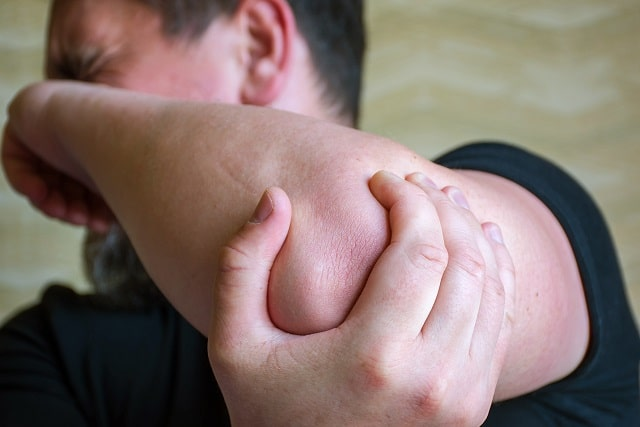 arthritis flare-up risk factors arthritic joints
