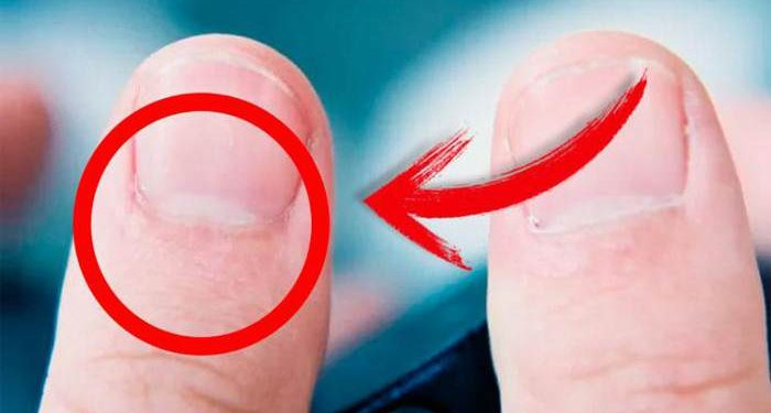 Half Moon Shape on Your Nails Mean