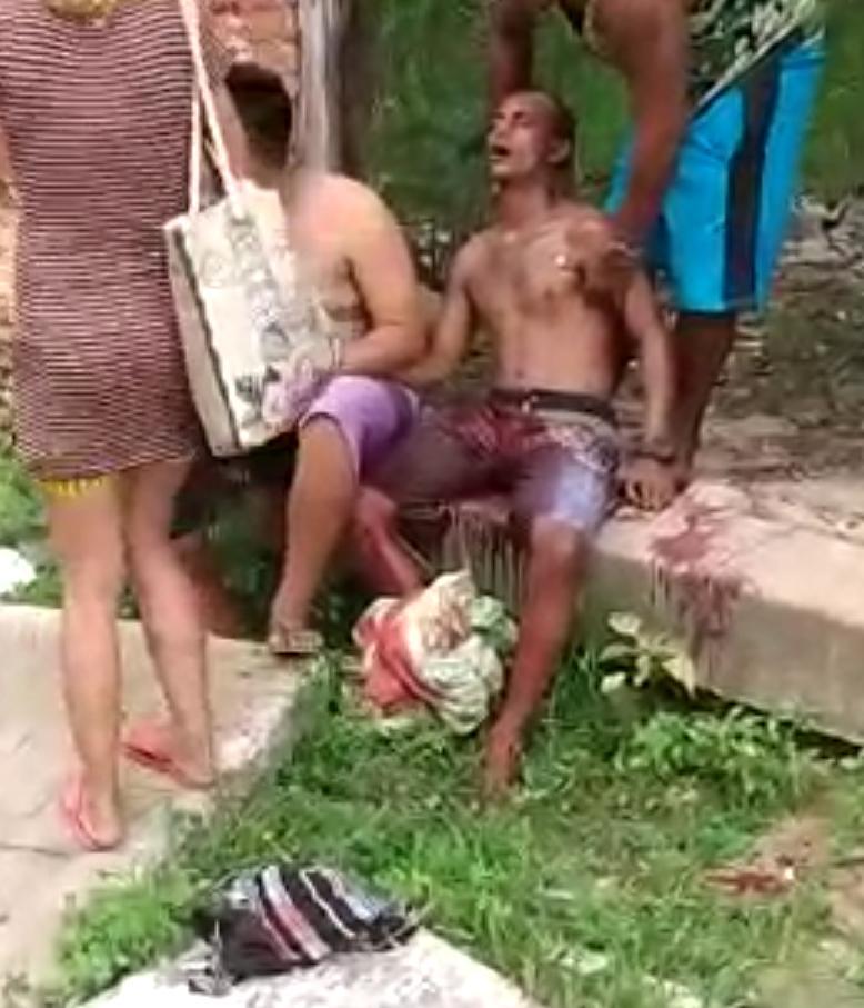 Em uma tentativa de homicídio homem leva tiro na perna em Parnaíba
