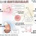 [臨床藥學] 癌症引起的高血鈣 (Malignancy-Induced Hypercalcemia)