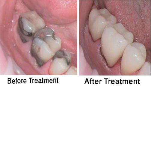 One Day Dentistry