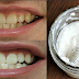 4 Easy Steps to Whiten Your Yellow Teeth, Eliminate Plaque and Tartar Accumulated