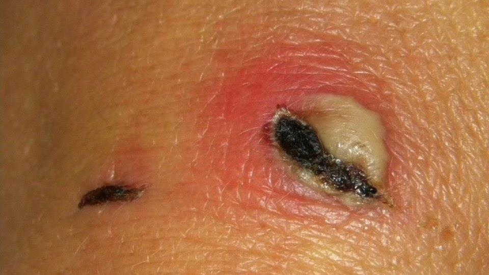 Healing Dog Wounds Naturally