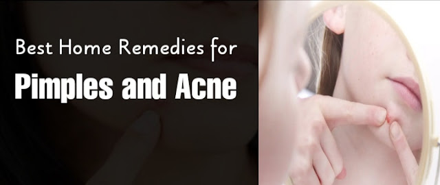 Best Home Remedies for Pimples and Acne