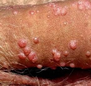 Penyakit Gatal Pada Kemaluan Wanita