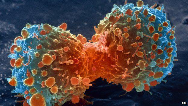 كاتب أمريكي يفضح شركات الأدوية العالمية بسبب رفضها إنتاج علاج للسرطان