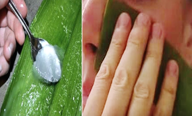 15 Minutes Facial Treatment: Rub Aloe Vera on Your Face for 15 Minutes and See What Happen
