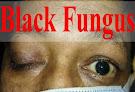 ब्लैक फंगस बीमारी क्या होती है। ब्लैक फंगस के लक्षण, कारण और बचाव
