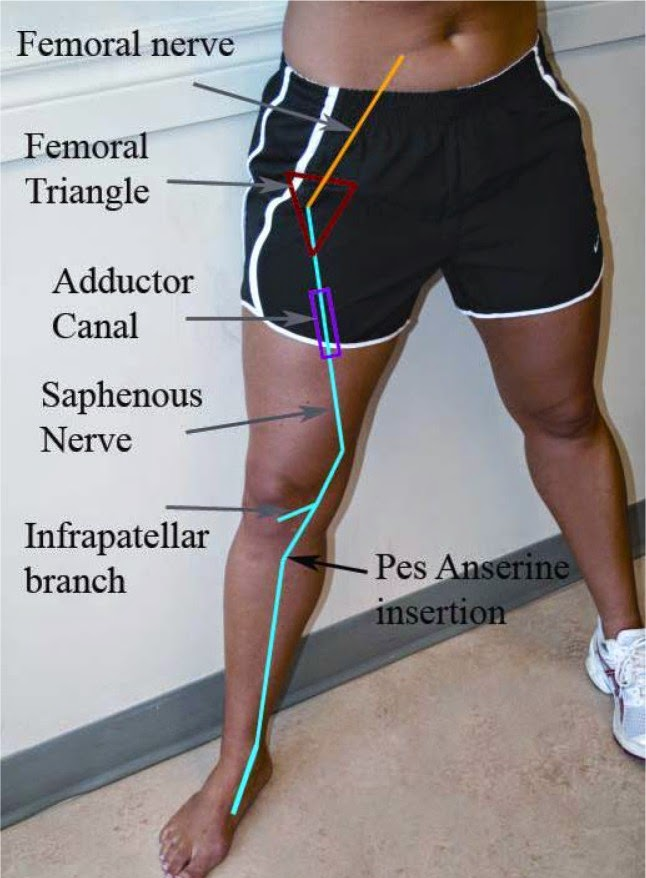 艾思物理治療所: 隱神經(saphenous nerve)在內收肌通道(adductor canal)被壓迫後對其臏骨下分支(infrapatellar branch)的影響
