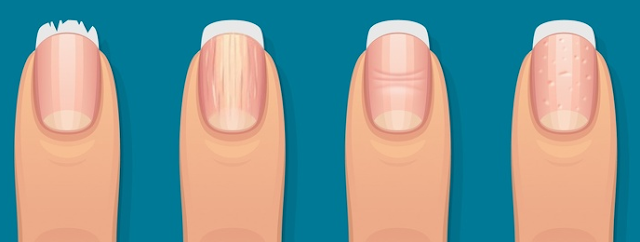 #What Your #Fingernails Say #About Your #Health