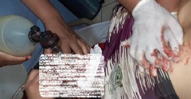 Mario Salvatierra trasladado sin signos vitales a un hospital con dos impactos de bala / RRSS