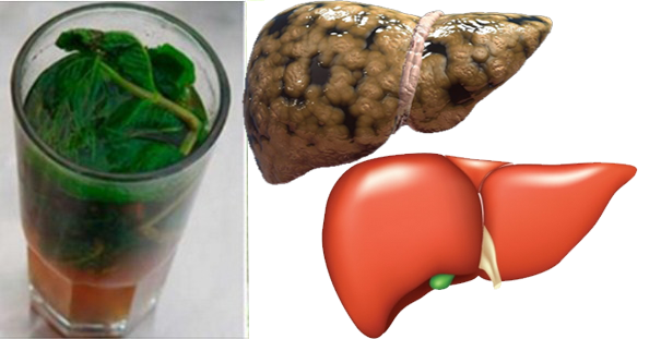 limpiar el hígado